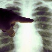 Un oncólogo examina la radiografía de unos pulmones
