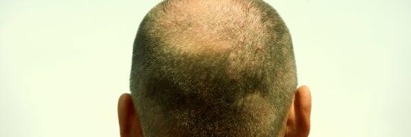 ¿El fin de la alopecia? Un estudio sostiene que se puede hacer que crezca nuevo pelo