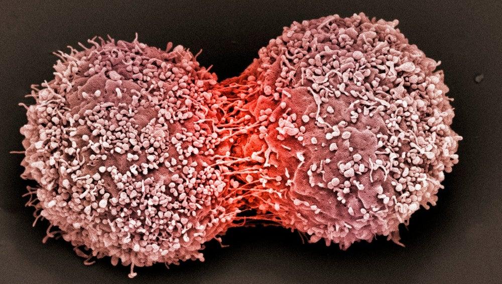 Descubren que la quimioterapia podría generar células cancerígenas