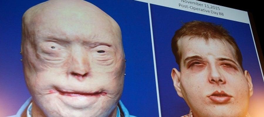 Imagen del paciente antes y después del trasplante de cara