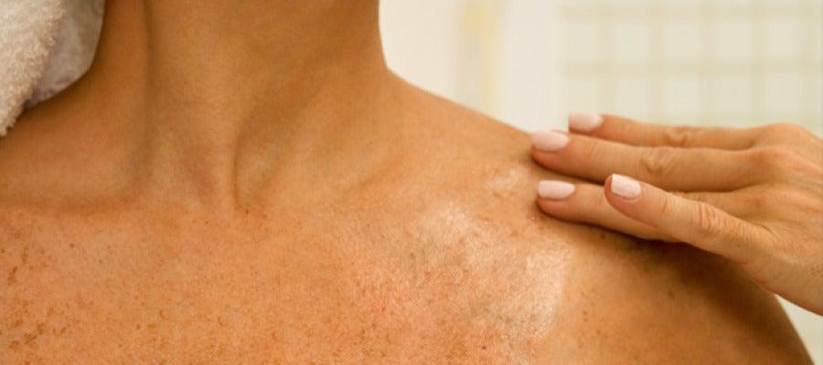 La lucha contra el cáncer de piel