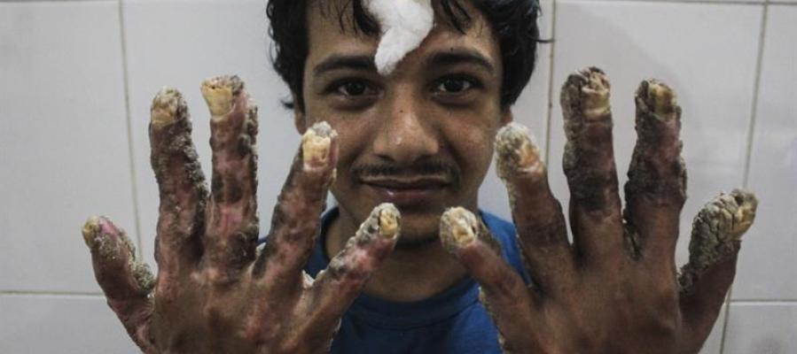 El 'hombre árbol' de Bangladesh tras una operación