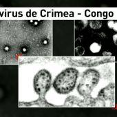 Virus Crimea Congo