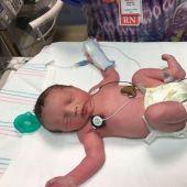 Lynlee Hope, el bebé que nació dos veces