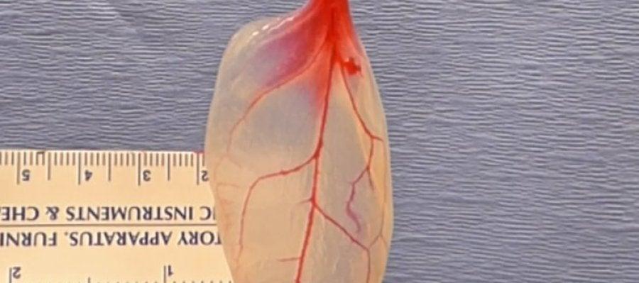 Las espinacas podrían remplazar el tejido vascular humano