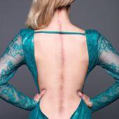Una joven reina de la belleza muestra la cicatriz que recorre su espalda