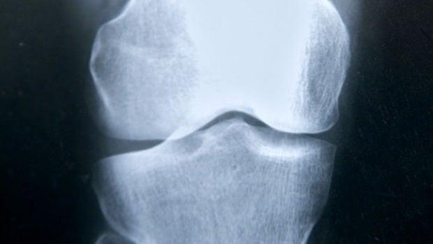 """Doctor Manzano: """"Hoy día, la masa ósea se puede recuperar"""""""
