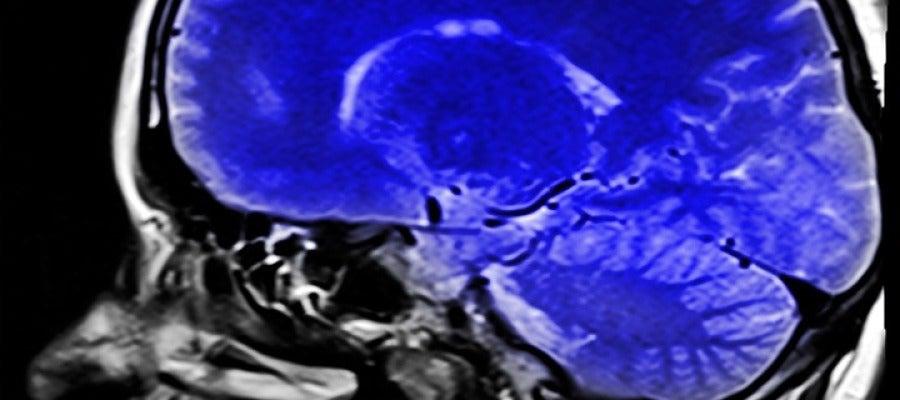 Resonancias magnética