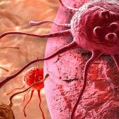 Célula cancerosa