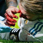 Sergio Ramos, sangrando
