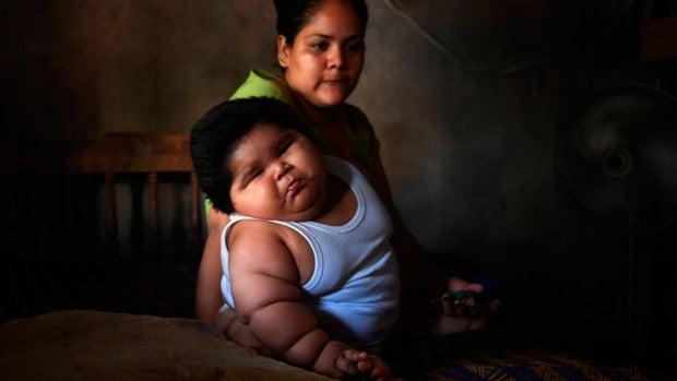 Los médicos investigan el extraño caso de un bebé de 11 meses que pesa 28 kilos