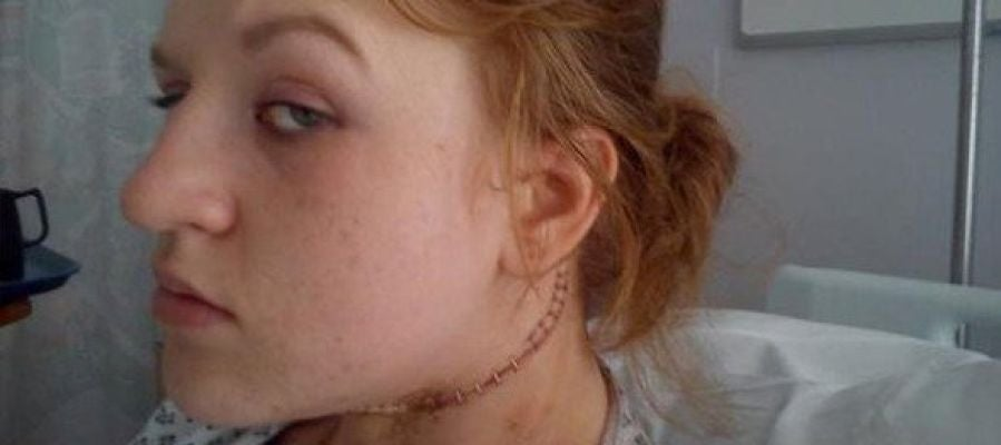 Cerys Head, tras ser operada de cáncer de tiroides
