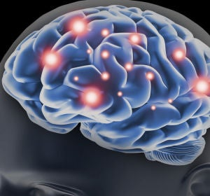 Un grupo de científicos españoles descubre una forma de frenar el desarrollo del cáncer cerebral más letal