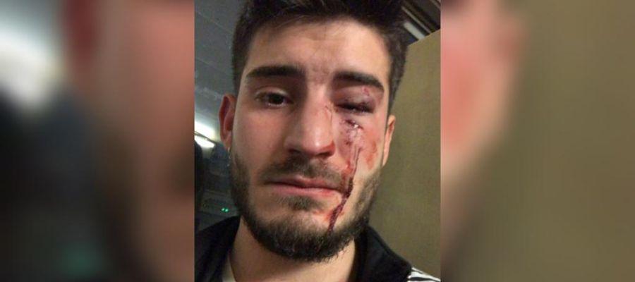 El joven que ha sido víctima de una agresión