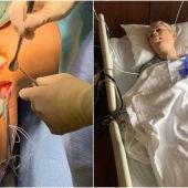 Imágenes de la operación de Lindsey Vonn