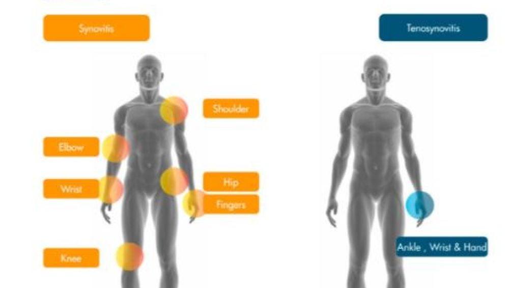 Lanzan 'Raussa', la nueva aplicación para mejorar el diagnóstico de la artritis reumatoide