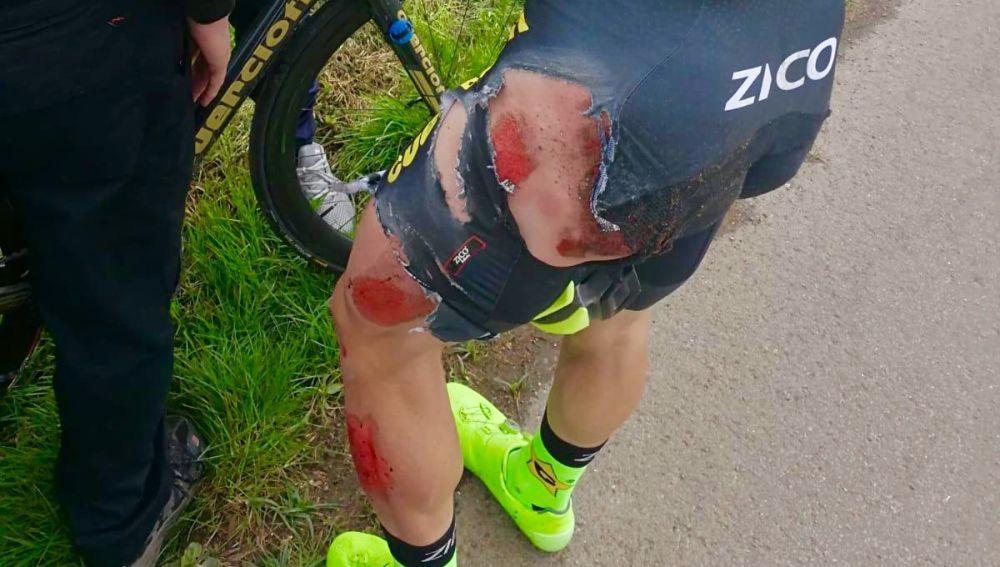 Estado en el que ha quedado el ciclista ilicitano José Carlos Núñez tras ser atropellado en Inglaterra.
