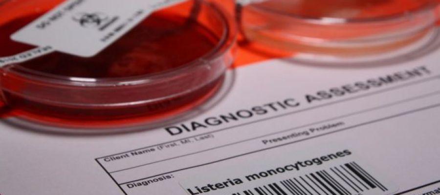 ¿Qué es y cuáles son los síntomas de la listeriosis?