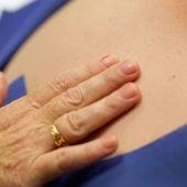 Cáncer de piel, melanoma