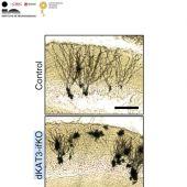 Estudio neuronas del Instituto de Neurociencias de la UMH.