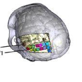 La UMH de Elche participa en el diseño de una neuroprótesis para ayudar a personas ciegas a percibir formas y letras.