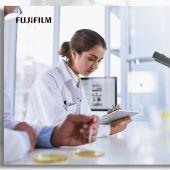 El uso de Inteligencia Artificial mejora en un 50% la detección de pólipos potencialmente cancerígenos en colonoscopias