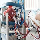 La terapia ECMO es un sistema de respiración extracorpórea que se utiliza en otras intervenciones como trasplantes de corazón.
