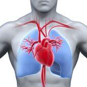 Infartos de miocardio y accidentes cerebrovasculares se cobran más de 17 millones de vidas al año