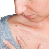Un 23,5% de los españoles, de más de 45 años, tiene manchas solares en la piel