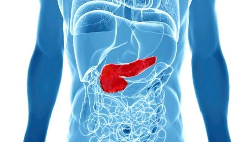 Gráfico de cáncer de páncreas
