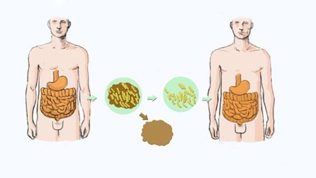 ¿Qué son y cómo cuidar nuestras microbiotas?