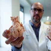 Corazones impresos a tamaño real en 3D para planificar la intervención en niños