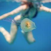 El pez atrapado en un medusa en aguas de la costa australiana