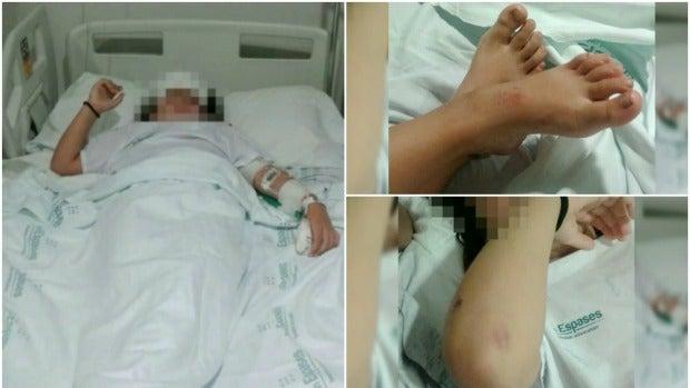Imágenes de la niña agredida en Palma