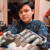 Leonardo Viscarra, el niño que se fabricó su propia mano robótica