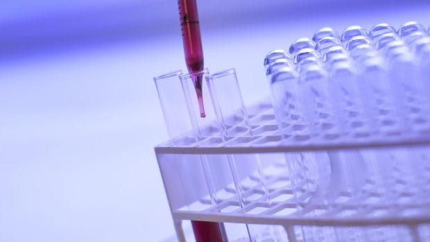 What's Cooking: Un test sanguíneo para reducir a la mitad los rechazos en los trasplantes hepáticos