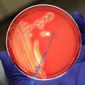 Un asistente de laboratorio examina una colonia de bacterias en un cultivo