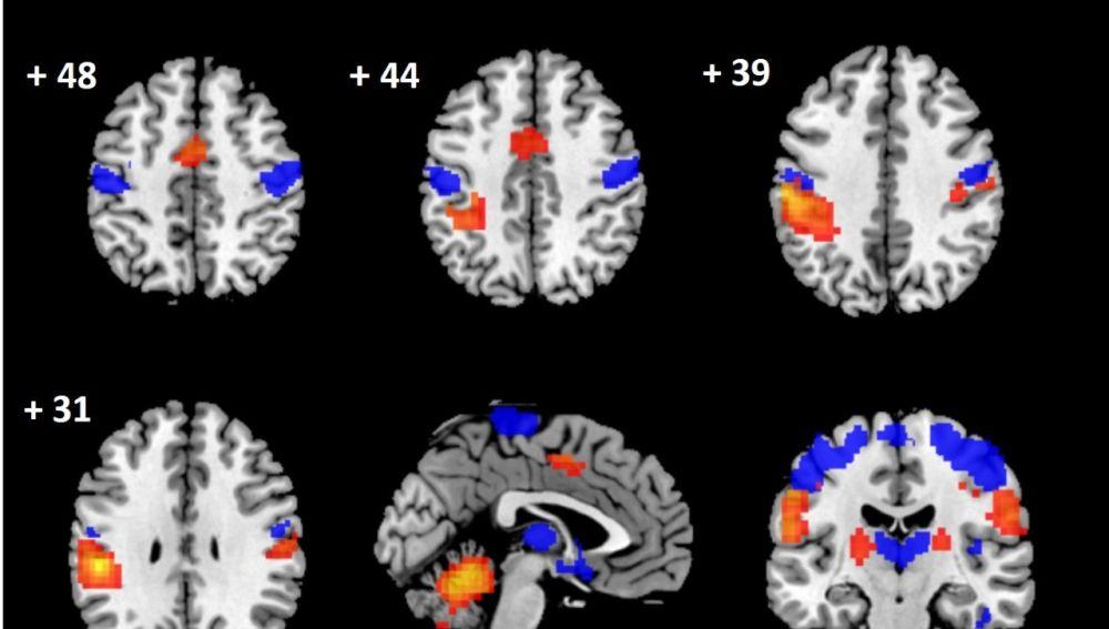 Imágenes del cerebro obtenidas en el estudio.