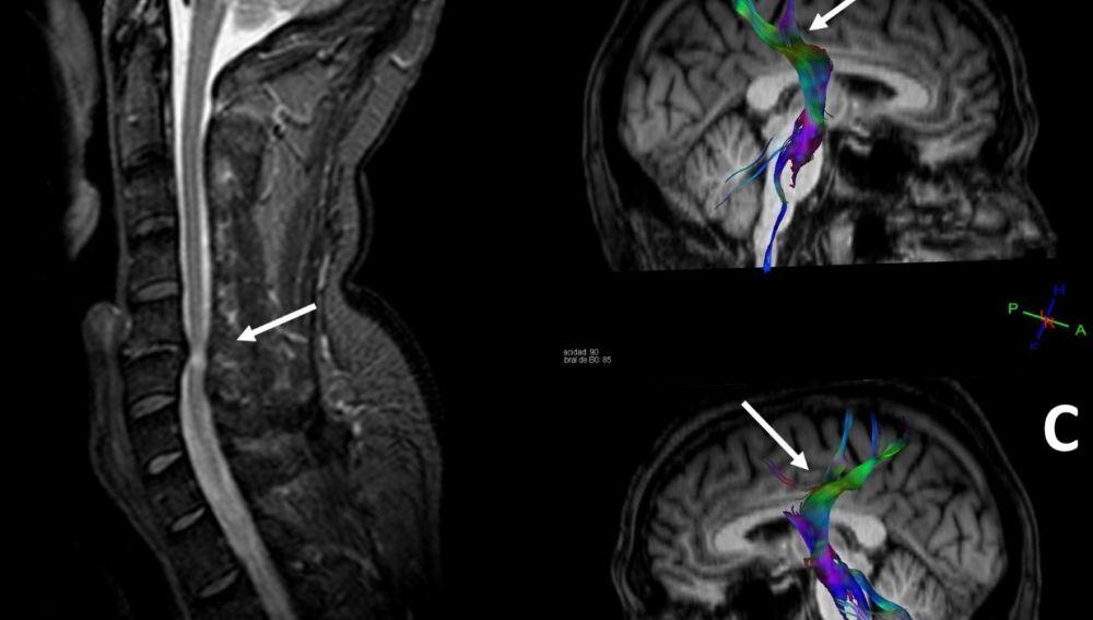 Imagen con la compresión de la médula espinal y su efecto en el cerebro.