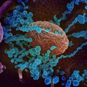 Imagen de microscopio del SARS-CoV-2