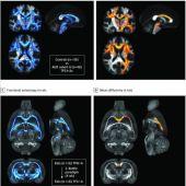 Estructura del cerebro en la adicción.