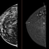 Mamografía en 3D con contraste.