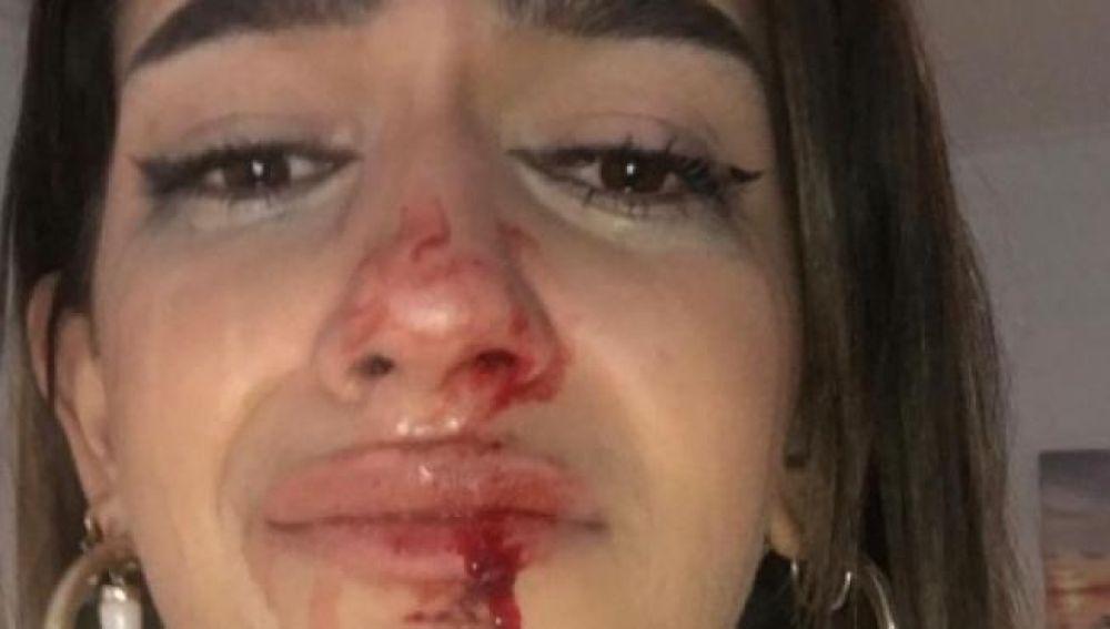 """Propinan una brutal paliza a una joven transexual en Barcelona: """"No más transfobia, no quiero morir mañana"""""""