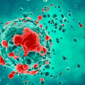 Un equipo de investigación de la Hispalense ha conseguido dar nuevos pasos en el proceso de búsqueda de un remedio para esta enfermedad