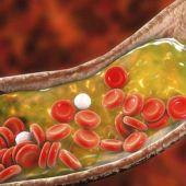 Uno de cada dos aragoneses tienen colesterol o triglicéridos altos y no lo saben